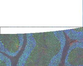 Polyclonal Antibodies