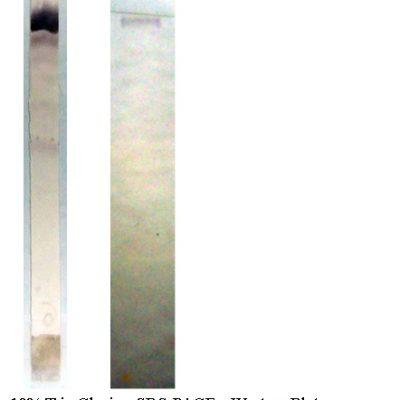 Anti Human vWF, Clone 31F5